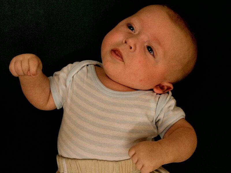 Причины кривошеи у взрослых и детей